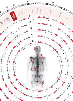 Circular genome visualization and data visualization with Circos: Somatic Alterations Contributing to Metastasis of a Castration Resistant Prostate Cancer (310 x 427)